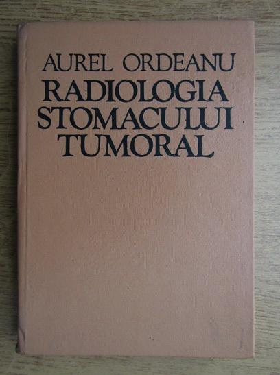 Anticariat: Aurel Ordeanu - Radiologia stomacului tumoral