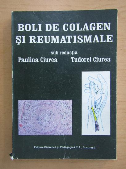 Anticariat: Paulina Ciurea - Boli de colagen si reumatismele