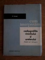 R. Hickel - Cum interpretam radiografiile rinichiului si ureterului