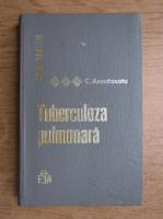 Anticariat: Constantin Anastasatu - Cum tratam tuberculoza pulmonara