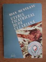 Anticariat: Ioan Munteanu - Uterul cicatriceal dupa cezariana