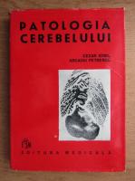 Anticariat: Cezar Ionel - Patologia cerebelului