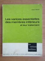 Claude Frileux - Les varices essentielles des membres inferieurs et leur traitement