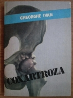 Anticariat: Gheorghe Ivan - Coxartroza